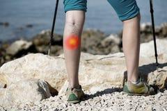 Frau mit schmerzlichen Krampfadern auf einem Bein mit rotem Punkteffekt stockfotografie