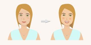 Frau ` s Gesicht mit Hautproblemen vor und nach Hautbehandlung lizenzfreie abbildung