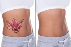 Frau vor und nach Laser-Tätowierungs-Abbau-Behandlung stockfoto