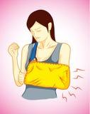 Frau war gebrochener Arm Stockfoto