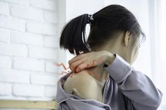 Frauen mit itching stockfoto