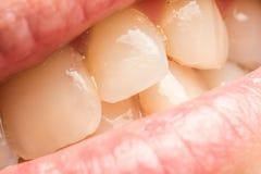 Frauen-natürliche Lippen und Zähne Makro Stockfotos