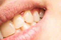Frauen-natürliche Lippen und Zähne Makro Lizenzfreies Stockbild