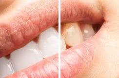 Frauen-Zähne vor und nach dem Weiß werden des Verfahrens Stockfotografie