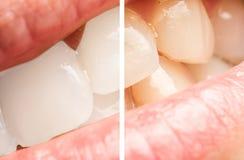 Frauen-Zähne vor und nach dem Weiß werden des Verfahrens Lizenzfreie Stockfotos