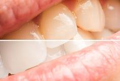 Frauen-Zähne vor und nach dem Weiß werden des Verfahrens Stockfoto