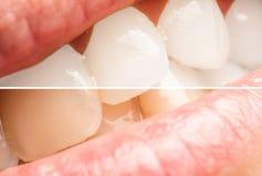 Frauen-Zähne vor und nach dem Weiß werden des Verfahrens Stockbild