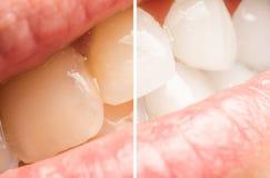 Frauen-Zähne vor und nach dem Weiß werden des Verfahrens Stockbilder