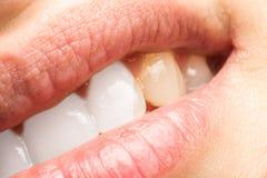 Frauen-Zähne vor und nach Zahnarzt Whitening Procedure Stockfoto