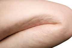 Frauenfahrwerkbein Cellulite stockbild
