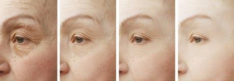 Frauengesicht knittert geduldigen Unterschiedkosmetiker der Korrektur vor und nach Cosmetologybehandlungsverjüngung stockbild