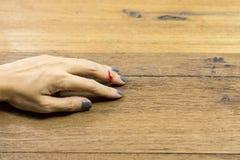 Frauenhand auf links mit dem Mittelfinger Blutung von Finger whi lizenzfreie stockfotografie