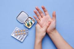 Frauenhand mit Gelenkschmerzen Stockfoto
