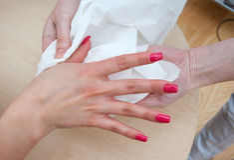Frauenhand nach Behandlung Lizenzfreie Stockfotos