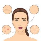 Frauenhautproblem-Vektorillustration Weibliches Gesicht mit problematischen Bereichen der Häute vektor abbildung