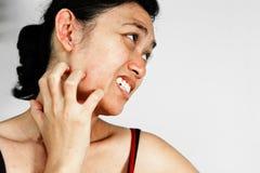 Frauenkratzergesicht mit Hauthautausschlag Stockfoto