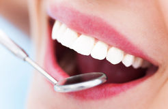 Frauenzähne und ein Zahnarztspiegel Stockbilder