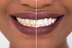 Frauenzähne vor und nach dem Weiß werden Stockfotos