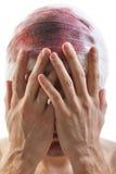 förbinda den head wounden för blod Arkivfoto