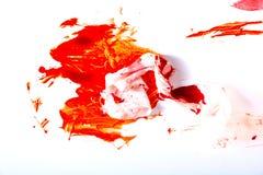 Förbinder och blod Arkivfoto