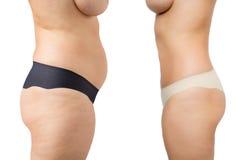 Före och efter viktförlust Arkivbild