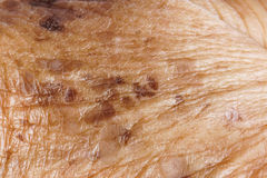 Freckle. On woman skin closeup / Skin problem / Sign of Aging royalty free stock photos