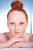 Freckled beauty Stock Photography