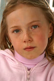 Freckled Face Stock Photo