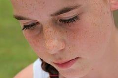 Freckled Gezicht Stock Fotografie
