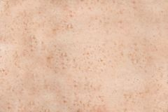 Freckled Human Skin Royalty Free Stock Photo
