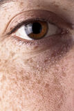 Freckles Stock Image