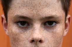 freckles photographie stock