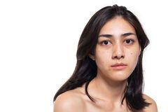 Free Freckles, Blemish, Pimple, Acne And Dull Skin On Her Beautiful Asian Face. Asian Woman Gets Sad, Beautiful Young Woman Get Problem Royalty Free Stock Photos - 164413918