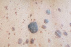 Freckles on the skin. Freckles Dermatitis and itching on the skin royalty free stock photos