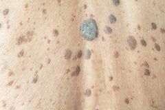 Freckles on the skin. Dermatitis and skin problems royalty free stock images