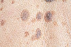 Freckles on the skin. Itching and dermatitis skin problems royalty free stock photo