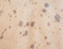 Freckles on the skin. Problem Dermatitis and itching stock images