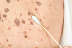 Freckles on the skin. And Skin problems and itching stock photo