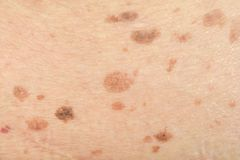 Freckles on the skin. And Skin problems and itching stock photography