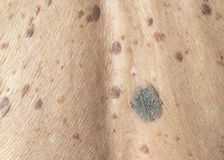Freckles on the skin. And skin and itching problems royalty free stock photo