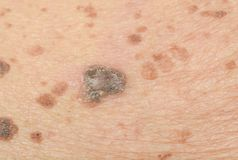 Freckles on the skin. And Skin problems and itching royalty free stock image