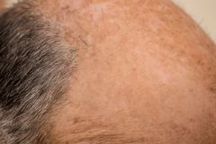 Frente calva de un hombre con pérdida de pelo imágenes de archivo libres de regalías