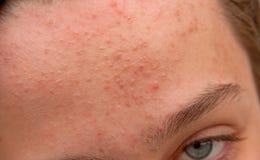Frente del acné Imagenes de archivo