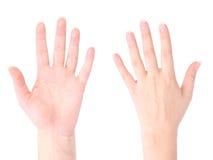Frente y parte posterior de la mano Imagen de archivo libre de regalías