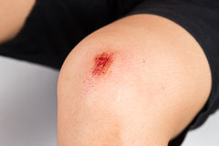 Fresh bloody bruise wound on the knee Royalty Free Stock Images