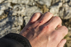 Fresh wound on his hand Stock Photo