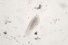 Freshwater zooplankton probably protozoan ciliated Ciliophora Royalty Free Stock Photos