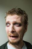 Frightened man with red painted eyes. Stock Photography