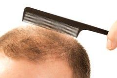 Förlust för hår för flintskallighetalopeciman Royaltyfria Bilder