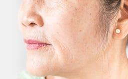 Froissé de la vieille peau asiatique de femme image stock